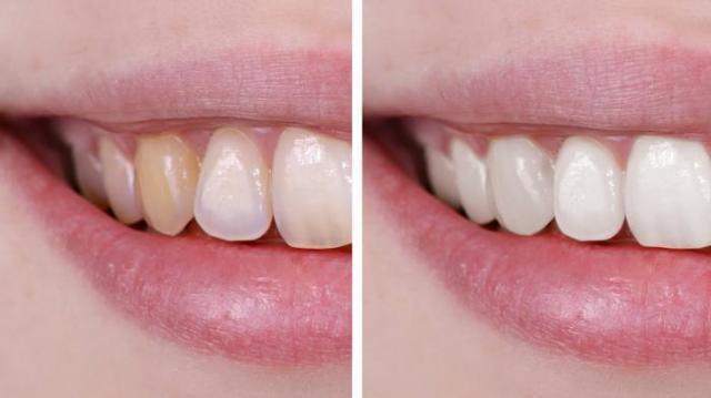 Как отбелить зубы в Фотошопе: два действенных способа